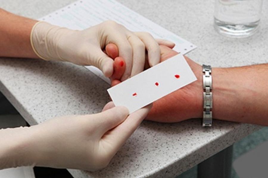 mi a teendő ha az ujjízület sérült bioptron térdkezelés